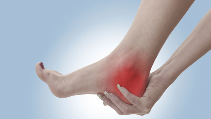 Napa Chiropractic Treatment for Plantar Fasciitis